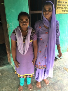 Jyoti, 13 yr. old with Down Syndrome, and her mother, who serves as the Village Resource Person for disabled people